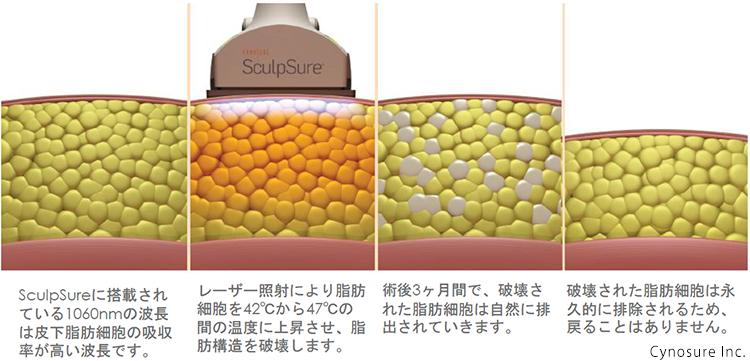 スカルプシュアーが皮下脂肪の厚みを減少させていく様子