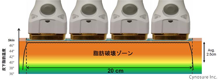 スカルプシュアーでレーザーを照射すると皮下2~3㎝までエネルギーが届く様子