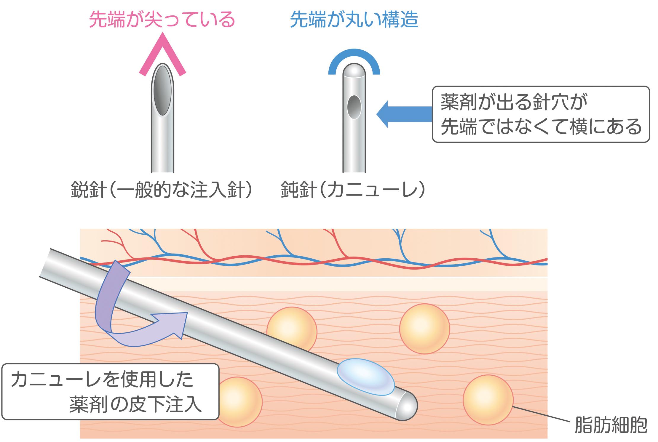Uma cânula que alivia a dor das injeções de dissolução de gordura