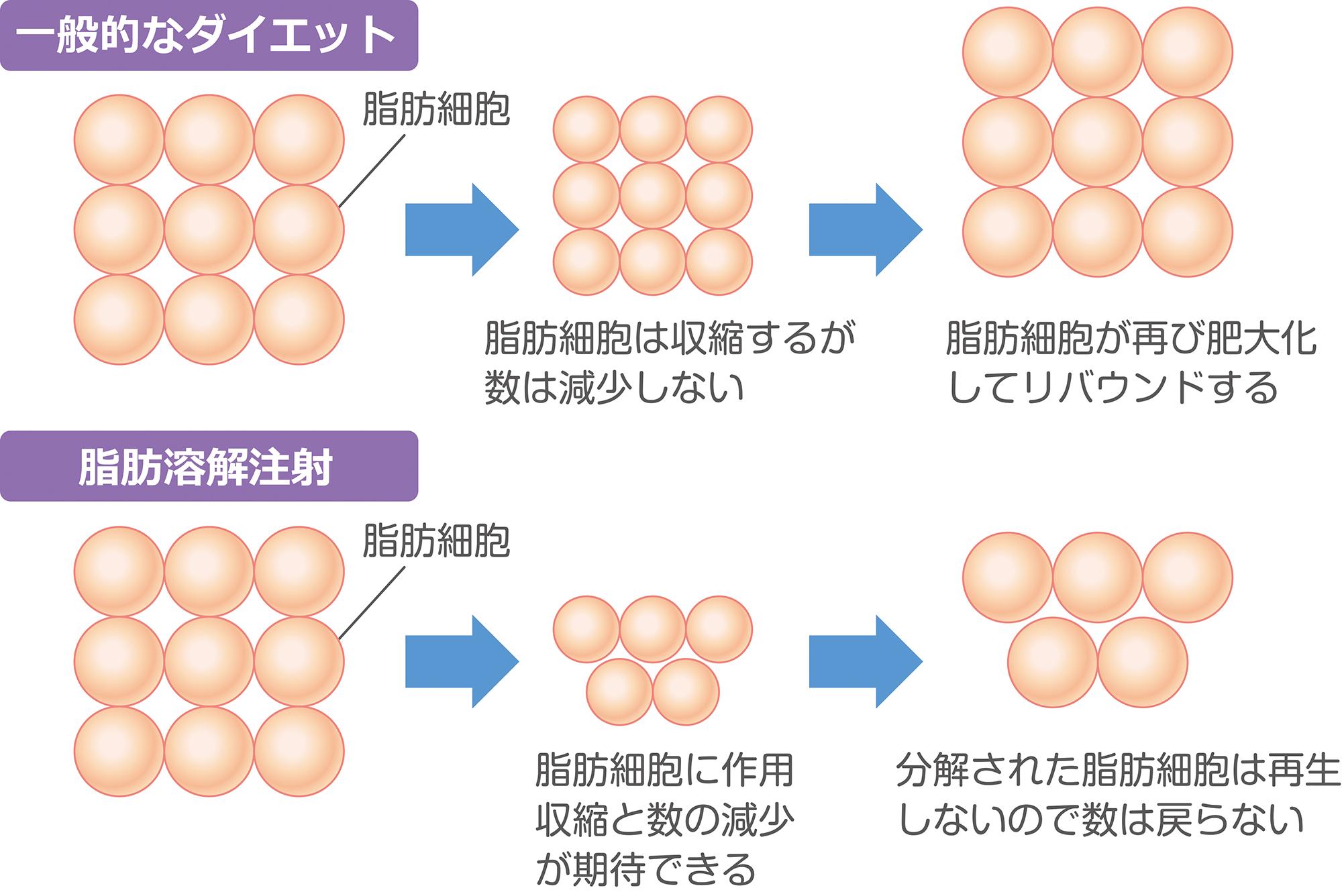 Células de gordura reduzidas por injeção lipolítica não se regeneram