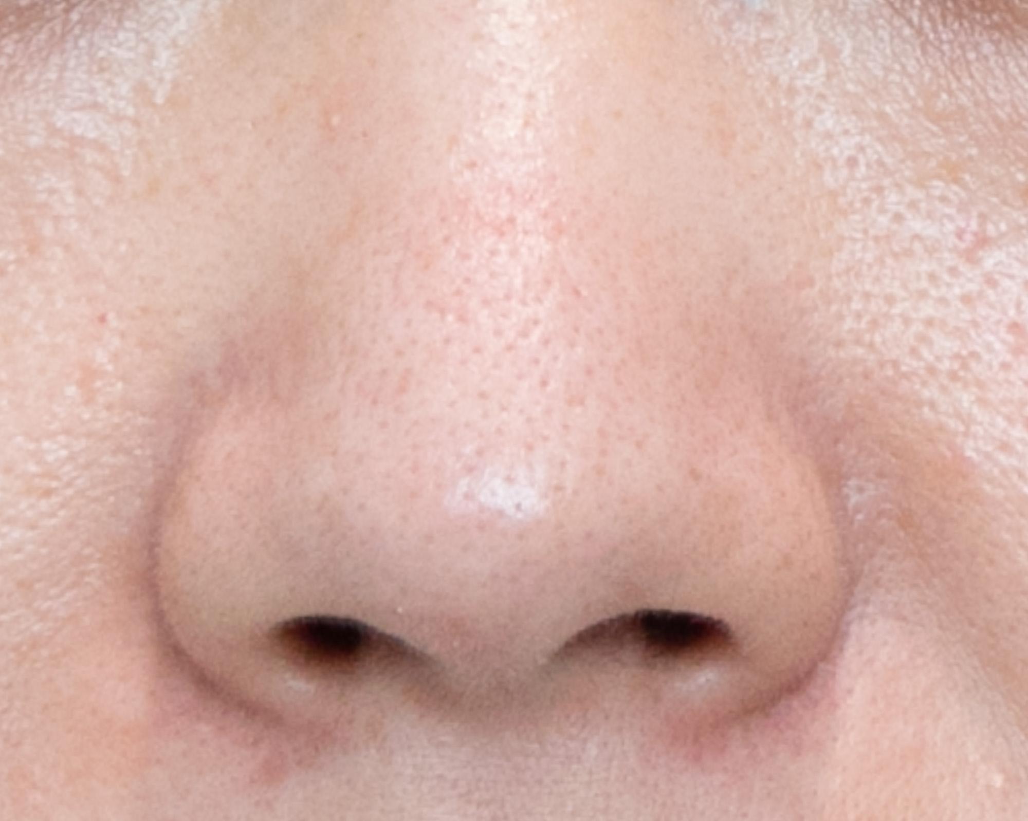 アップ過ぎると鼻孔に目が行ってしまう