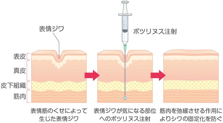 ボツリヌス注射による表情ジワ治療のイメージ