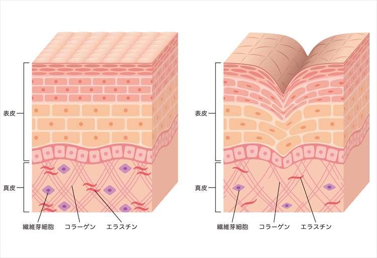 皮膚組織の図解