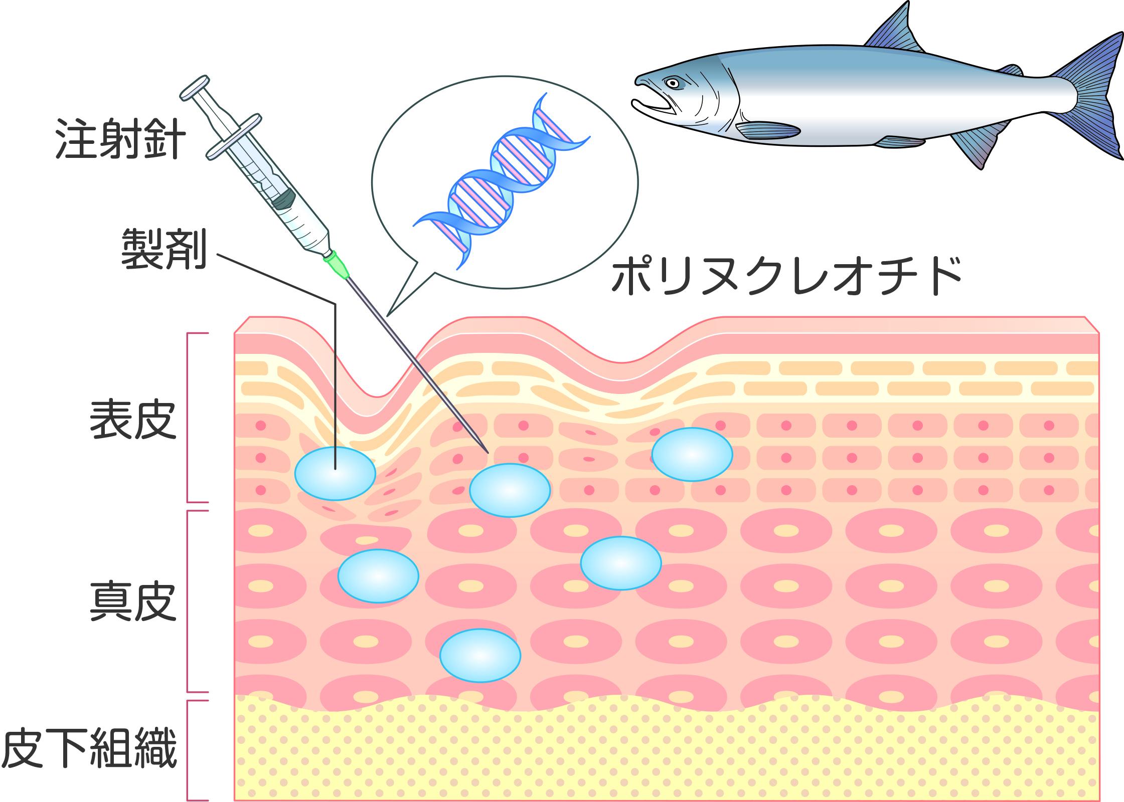サーモン由来のDNAを主成分とするリジュラン注射