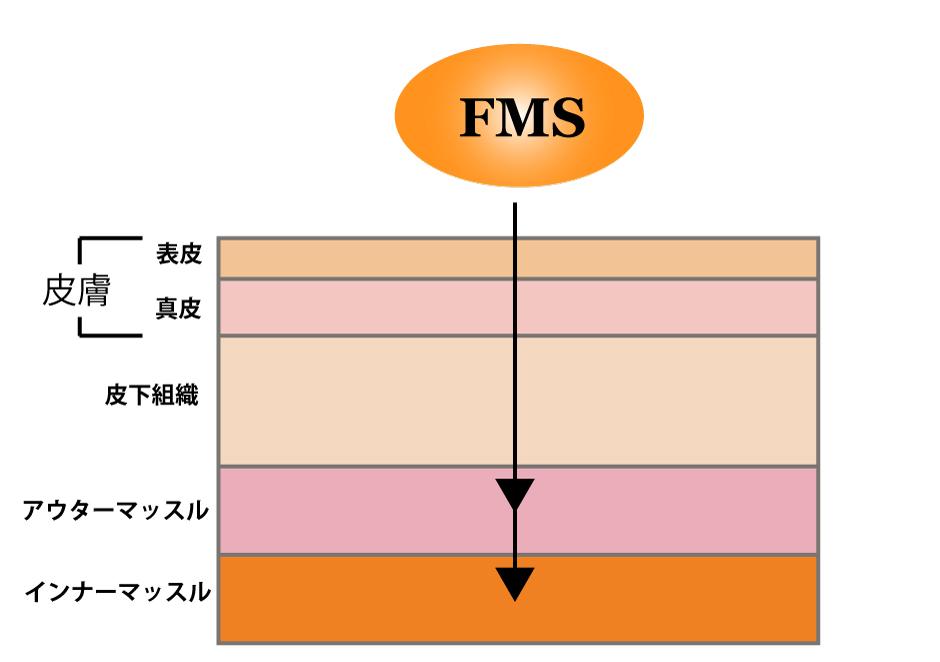 FMSの作用イメージイラスト