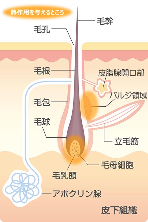 毛の構造と蓄熱式脱毛の作用のイラスト
