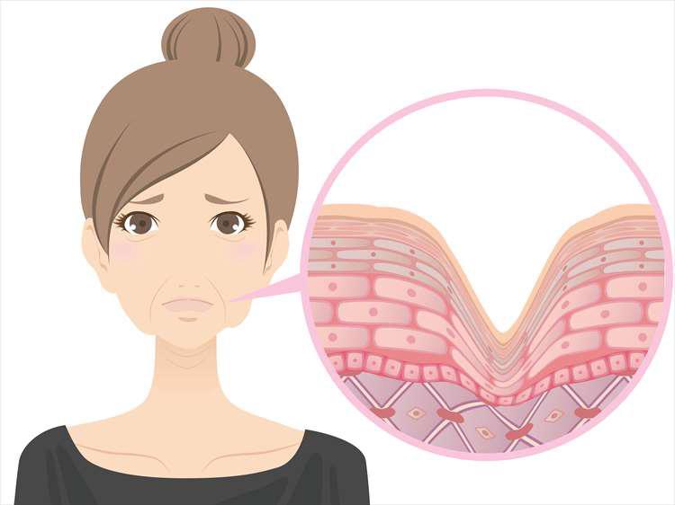 顔の皮膚がたるんでしまって悩んでいるイメージの女性