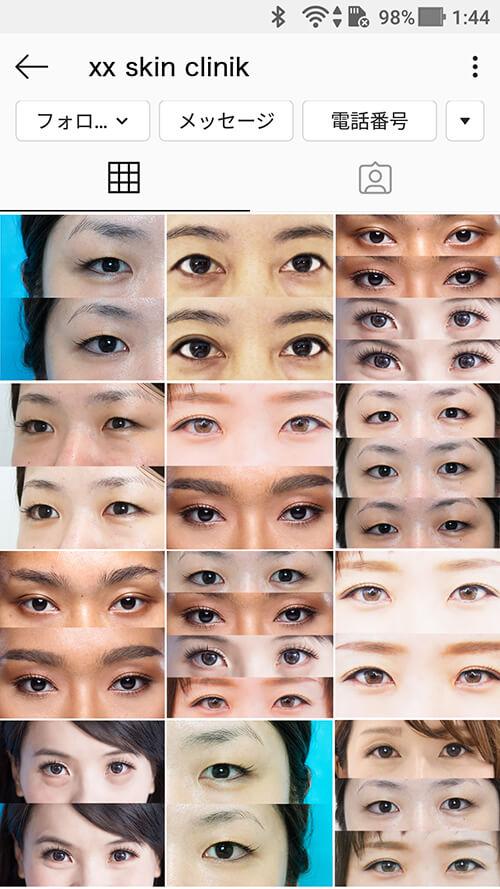 スマホで見るインスタグラムのギャラリー印象、目だけが並んで怖いNG例