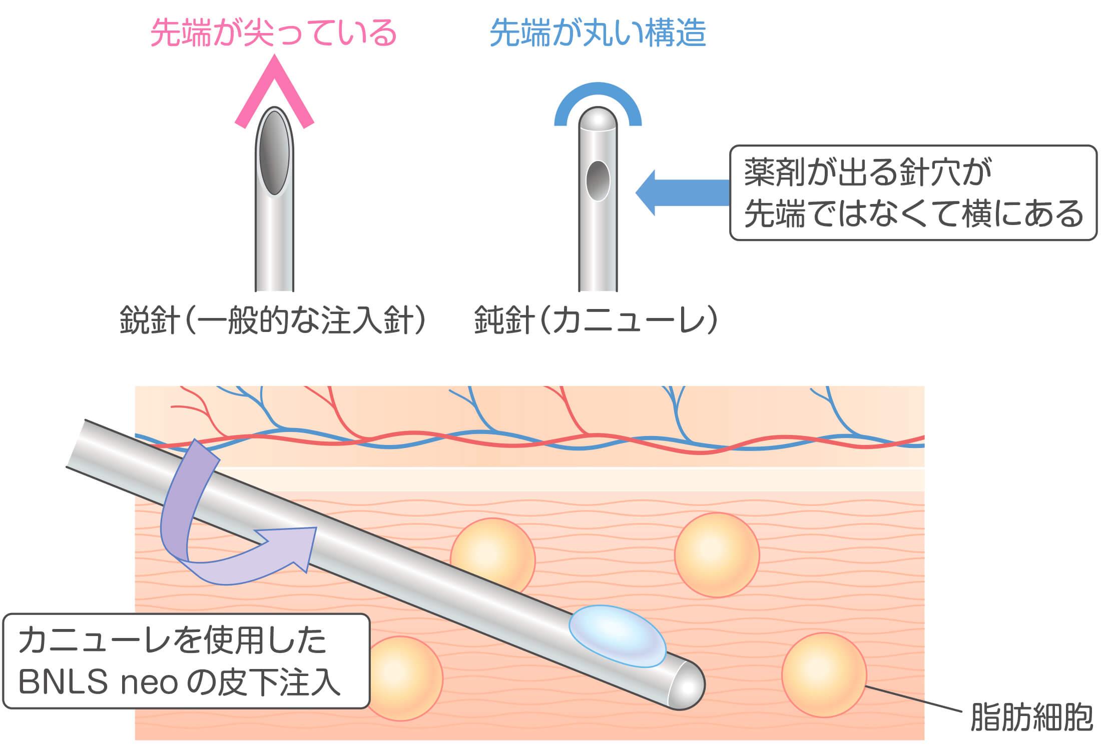 カニューレを用いたBNLS neoの注射方法イラスト