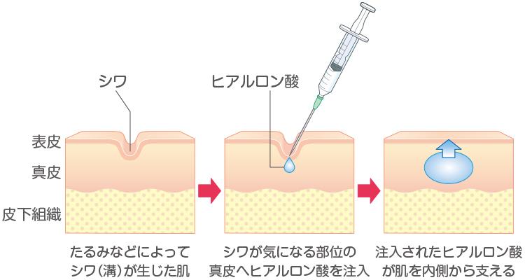 ヒアルロン酸注入によるシワ治療のイメージ