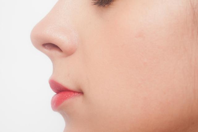 鼻中隔延長で得られる効果とダウンタイム・リスク・注意点