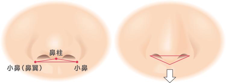 ヒアルロン酸の鼻中隔延長イメージ