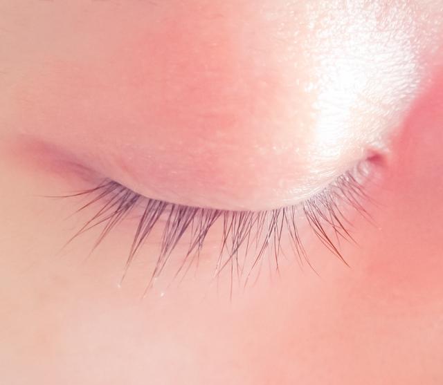 BNLS注射液對眼瞼脂肪的影響