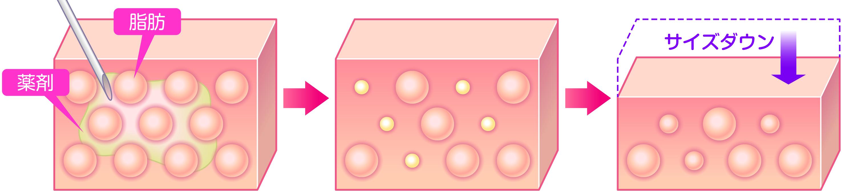 脂肪分解注射的BNLS導致脂肪細胞減少