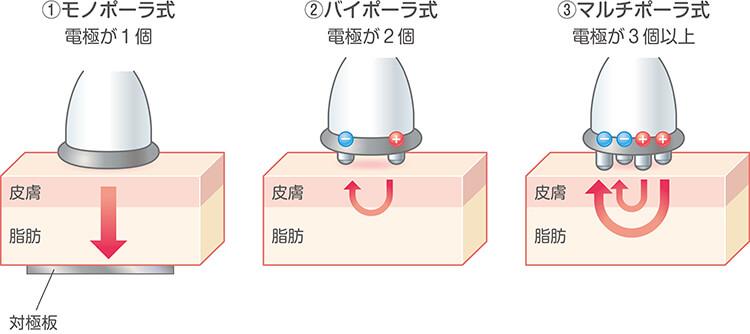 3種類の高周波マシン